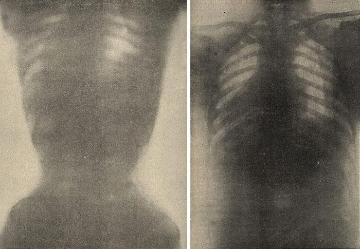 """30 Αδιανόητα πράγματα που οι γυναίκες έκαναν στο παρελθόν για να δείχνουν """"όμορφες"""" : Ακτινογραφία γυναικείου κορμού με κορσέ (αριστερά) και γυναικείος κορμός χωρίς κορσέ (δεξιά), 1908."""