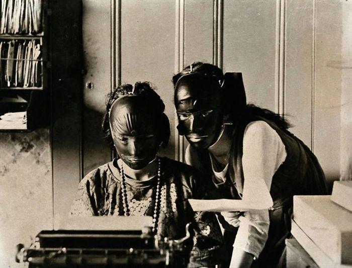 """30 Αδιανόητα πράγματα που οι γυναίκες έκαναν στο παρελθόν για να δείχνουν """"όμορφες"""" : Μάσκες ομορφιάς από καουτσούκ που χρησιμοποιούνταν από τις γυναίκες που ήθελαν να απαλλαγούν από τις ρυτίδες στη δεκαετία του 1920."""