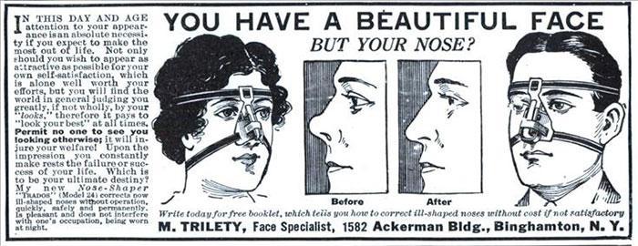 """30 Αδιανόητα πράγματα που οι γυναίκες έκαναν στο παρελθόν για να δείχνουν """"όμορφες"""" : Πρακτικές για να κάνουν την μύτη τους να δείχνει πιο όμορφη."""