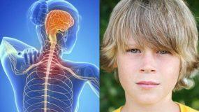 Σκλήρυνση κατά πλάκας στα παιδιά & στους εφήβους: Τα συμπτώματα