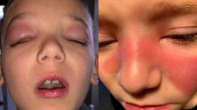 Τα κόκκινα σημάδια στα παιδιά μπορεί να είναι σύμπτωμα μιας σοβαρής ασθένειας