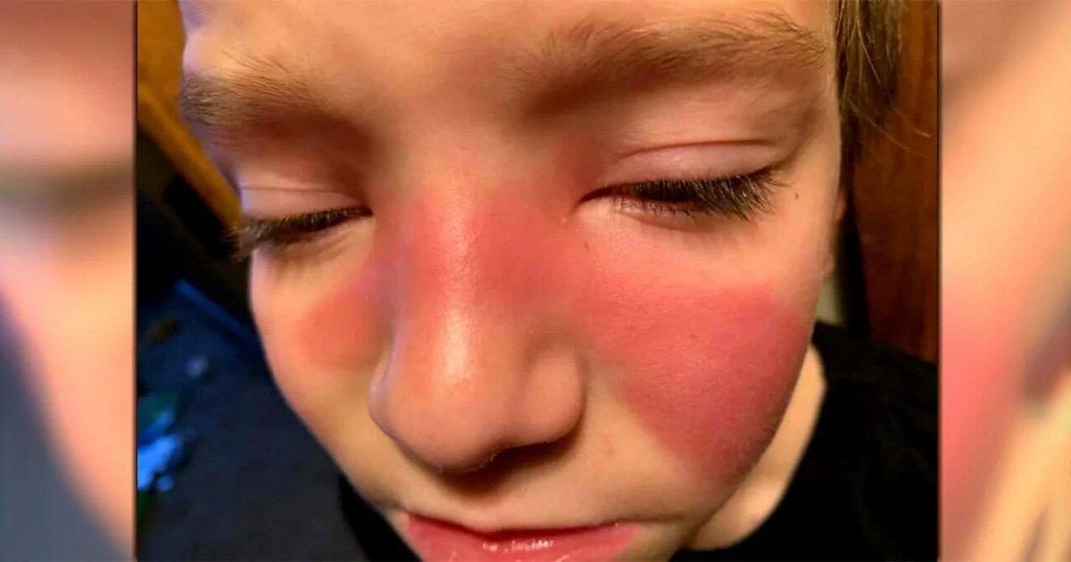 Τα κόκκινα σημάδια στα παιδιά μπορεί να δείχνουν στρεπτόκοκκο