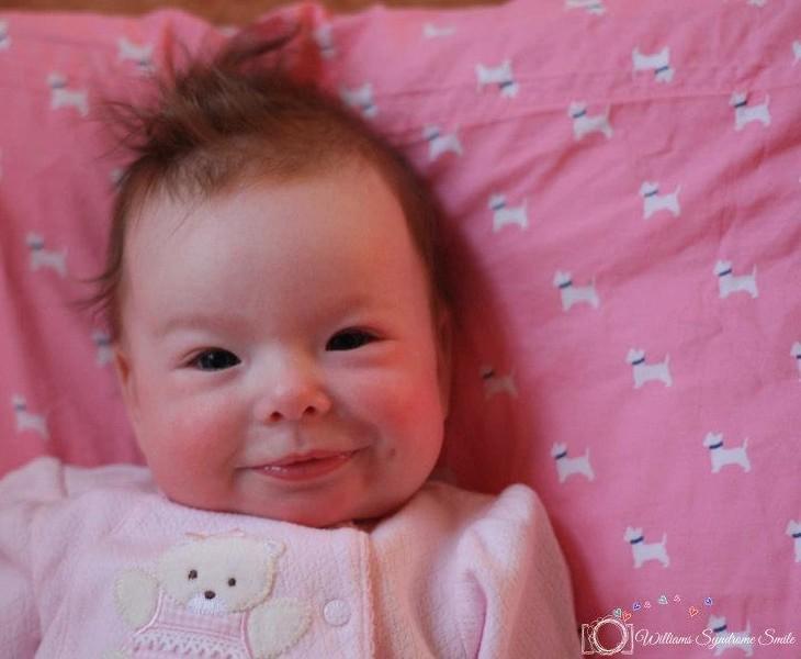 μωρό με σύνδρομο Williams
