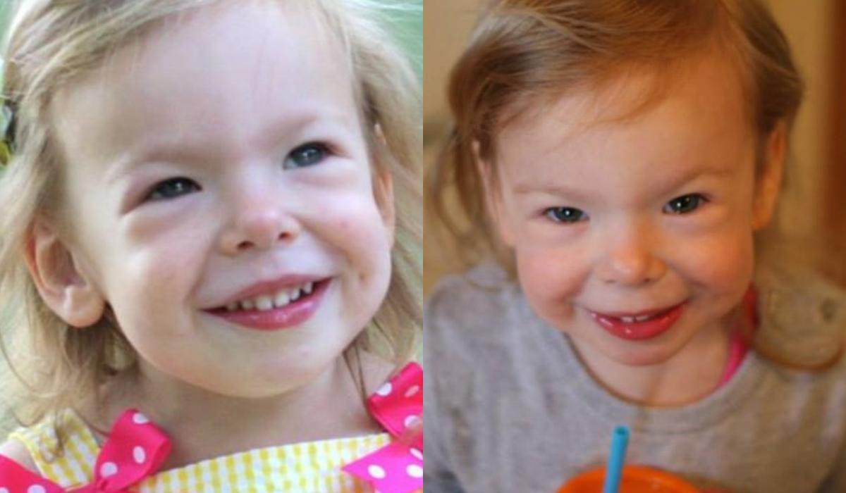 Σύνδρομο Γουίλιαμς: Τι είναι και ποια τα συμπτώματα στα παιδιά