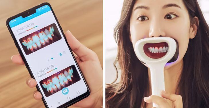 Αυτό το εξάρτημα δείχνει πόσο βρώμικα είναι τα δόντια σου