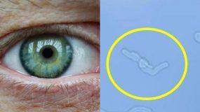 """Γιατί βλέπουμε """"κηλίδες"""" ή """"μυγάκια"""" στα μάτια μας; Πόσο επικίνδυνο μπορεί να είναι;"""