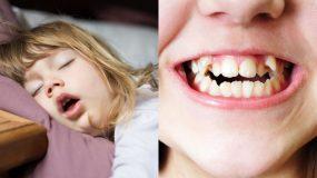 Τα 3 προβλήματα υγείας που μπορεί να έχει το παιδί αν κοιμάται με το στόμα ανοιχτό
