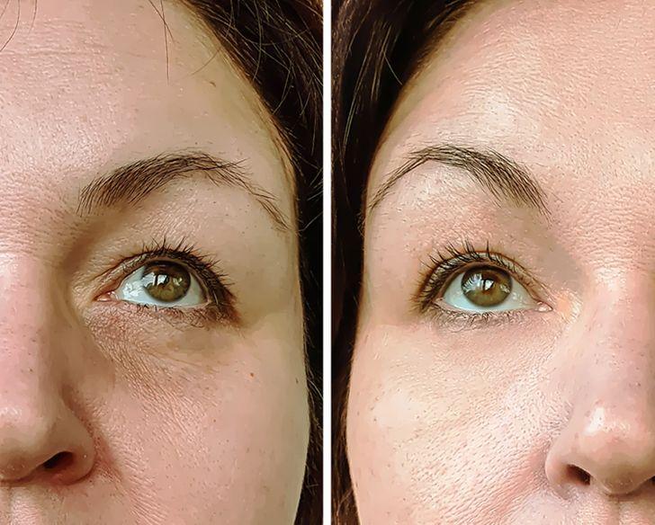 1 κουταλιάελαιόλαδο κάθε πρωί μεταμορφώνει το δέρμα σας_