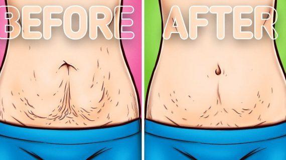 10 τρόποι για να σφίξει το δέρμα σας _