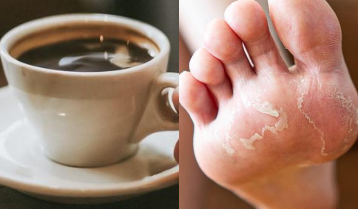 Καφές: Τι θα συμβεί στο σώμα μόλις πιούμε καφέ το πρωί _