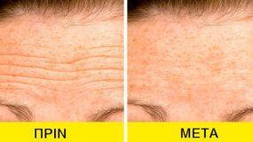 Ρυτίδες στο μέτωπο : 5 φυσικές θεραπείες για να εξαφανιστούν _
