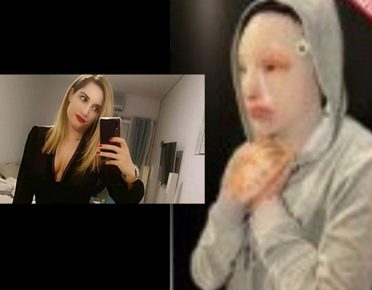 Η φωτογραφία της Ιωάννας μετά την επίθεση με βιτριόλι