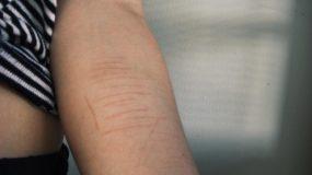 Χαρακιές στα χέρια και αυτοτραυματισμός στην εφηβεία_