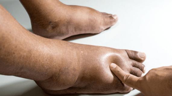 Πρησμένοι αστράγαλοι: Οι 9 πιθανές αιτίες και πότε πρέπει να πάτε στον γιατρό_