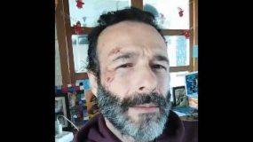 Θανάσης Ευθυμιάδης: Ατύχημα για τον ηθοποιό