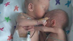 Νεογέννητο έζησε από θαύμα και αγκαλιάζει τον δίδυμο αδερφό της_