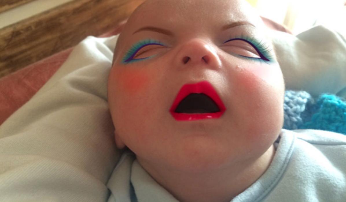 Μαμά έβαψε το μωρό της και του προκάλεσε δερματίτιδα_
