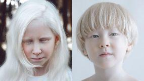 Aλμπινισμός: 20 φωτογραφίες που θα σας μαγέψουν _
