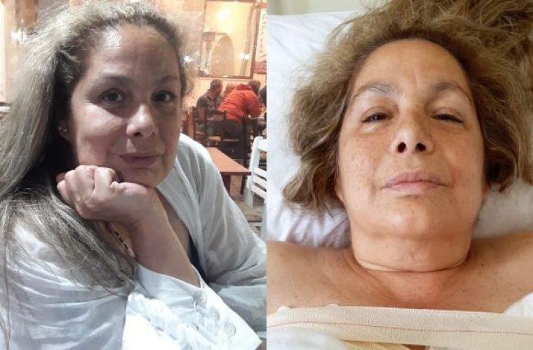 Σοβαρό χειρουργείο για τη Τζένη Χειλουδάκη