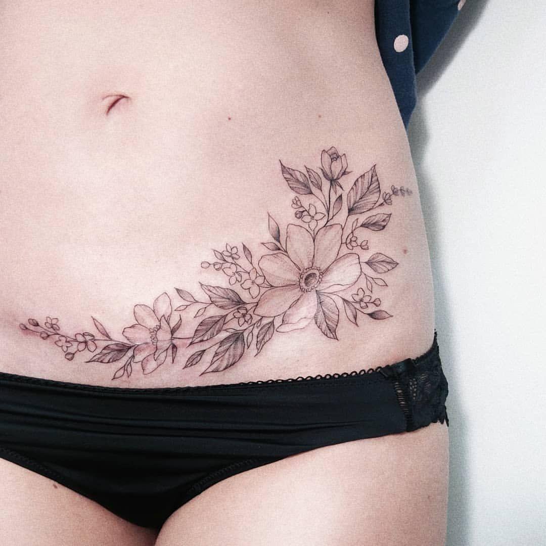 τατουάζ_με_λουλούδια_για_να_κρύψεις_το_σημάδι της καισαρικής_