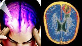 Εγκεφαλίτιδα: Τα συμπτώματα , η πρόληψη και η θεραπεία_