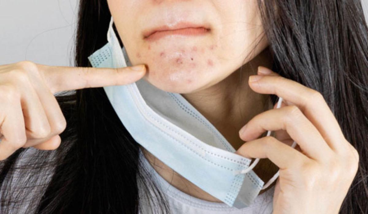 mascne_ακμή_από_την_προστατευτική μάσκα_πως_αντιμετωπίζεται_