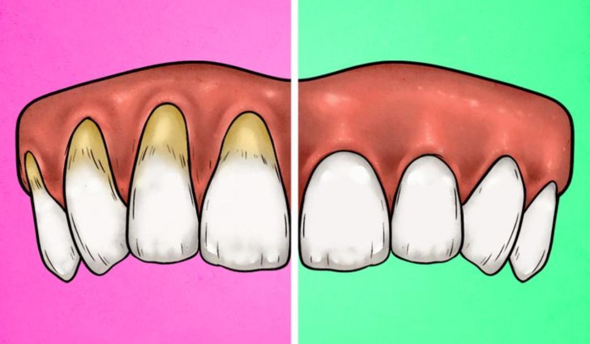4 σημάδια ότι βουρτσίζετε τα δόντια σας λάθος και οι σωστοί τρόποι να το διορθώσετε_
