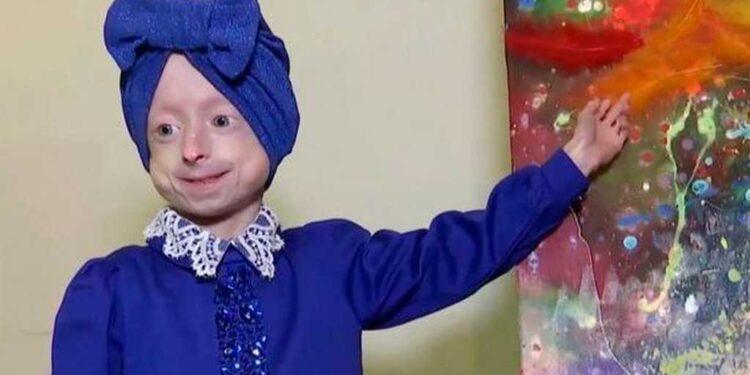 Μπέντζαμιν Μπάτον: Έφυγε η 10χρονη Ιρίνα που είχε σώμα 80χρονης