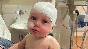 7 μηνών_παιδί_παραλίγο_να_χάσει_την_όραση_του_από_πιστολάκι μαλλιών_