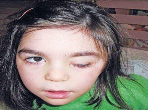 Ο γολγοθάς της Δαυιδούλας – παλεύει από πέντε μηνών με την επιληπτική εγκεφαλοπάθεια