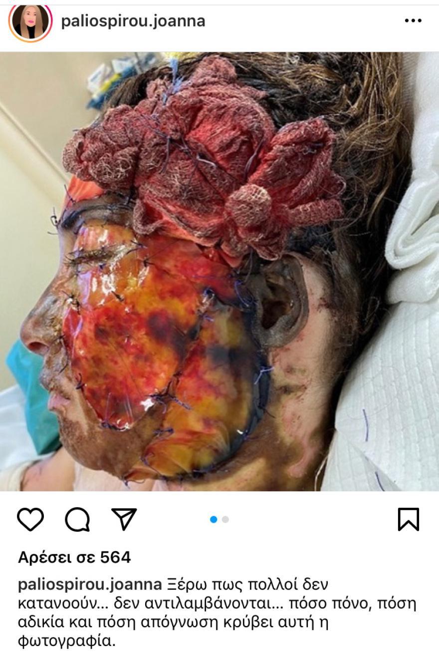 Επίθεση με βιτριόλι: Η σοκαριστική φωτογραφία που ανάρτησε η Ιωάννα Παλιοσπύρου – Προσοχή πολύ σκληρές εικόνες