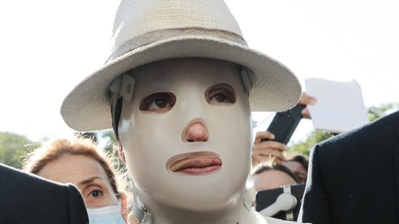 Επίθεση με βιτριόλι: Η ψυχρή δήλωση της κατηγορουμένης και το μεγαλείο ψυχής της Ιωάννας