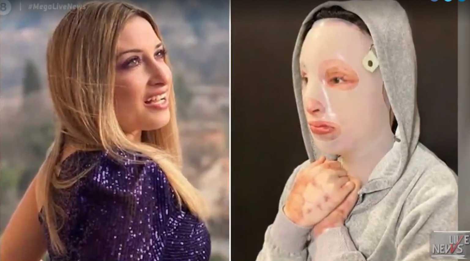 Ιωάννα Παλιοσπύρου-βιτριόλι-