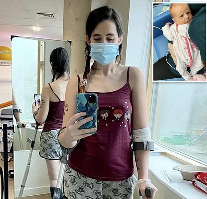μαμά-προτίμησε-να-χάσει-το-πόδι-της-από-το-να-κάνει-έκτρωση-
