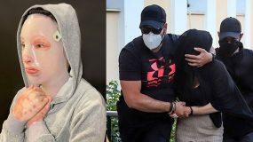 Επίθεση με βιτριόλι: Οργή για την Ιωάννα με αυτά που υποστηρίζει ο 40χρονος (βίντεο)