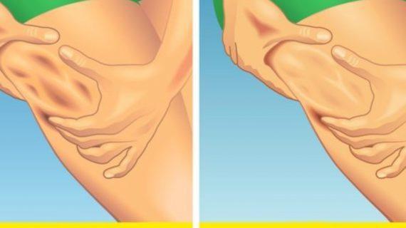 συμβουλές-για-απώλεια-κυτταρίτιδας-