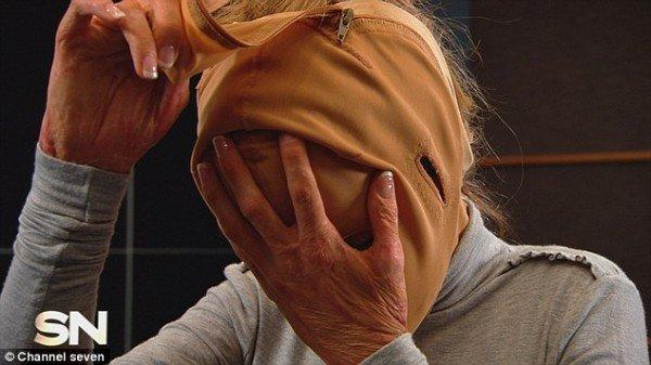 της-έβαλε-φωτιά-στο-πρόσωπο-και-βγάζει-την-μάσκα-ιστορία-