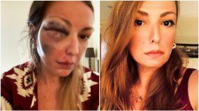 Στεφανία Τζαφέρη : Κύμα συμπαράστασης στο Twitter για την blogger που έπεσε θύμα κακοποίησης